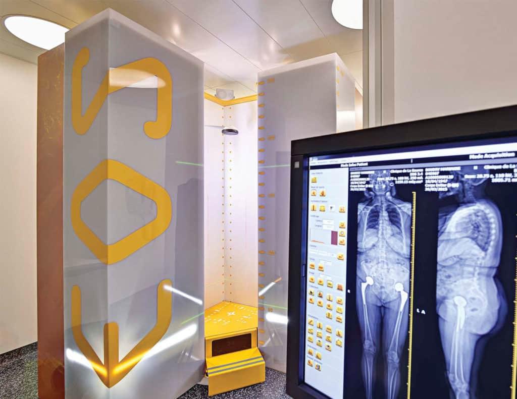 Equipement Centre Neuro Orthopédique Lausanne CNO EOS